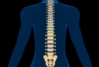 Adult onset scoliosis