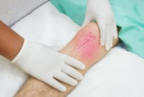 Physical Therapy and/or Knee Replacement