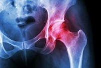A common cause of groin pain