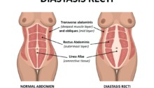 What Is Diastasis Recti And How PT Can Help?